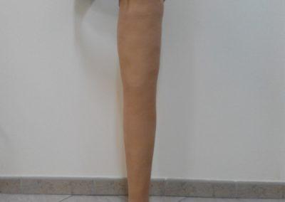 Proteza przy wyłuszczeniu w stawie biodrowym
