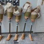 Protezy tymczasowe uda