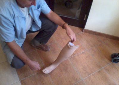 Proteza z pokryciem silikonowym