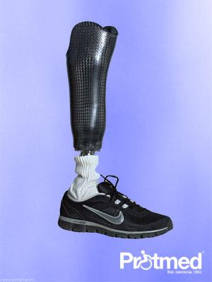 Proteza modularna podudzia z włókna węglowego